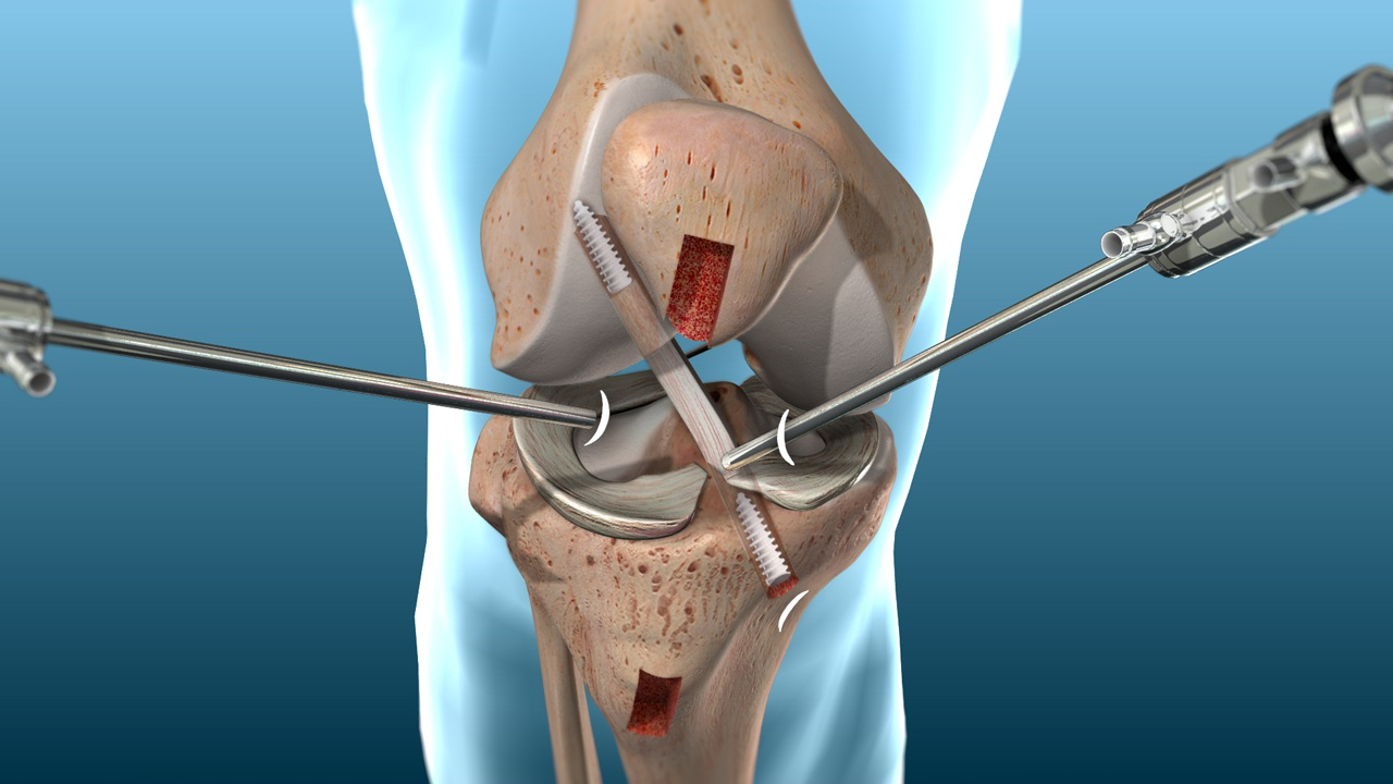 ligament knee surgery - 1280×720